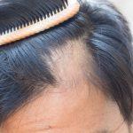 alopecia areata maschile
