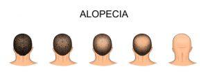 trattamento alopecia areata