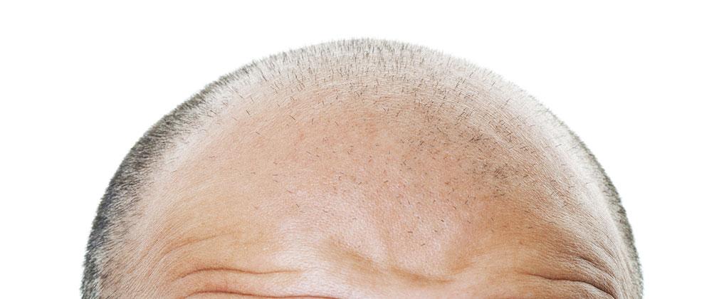 trattamento trapianto capelli